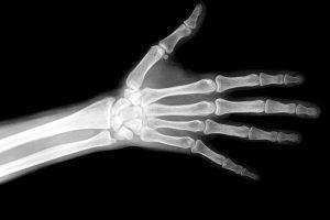 healthroom bone disease